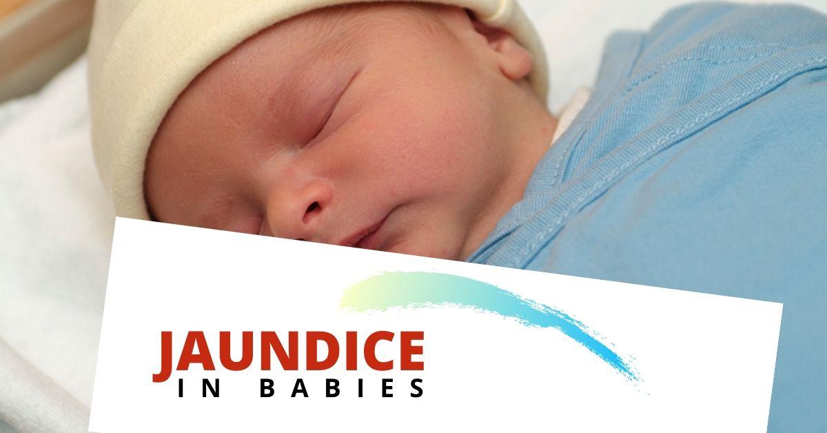 Jaundice in Babies